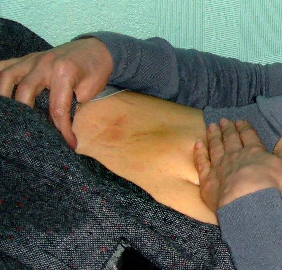 На тілі Тимошенко з'явився висип