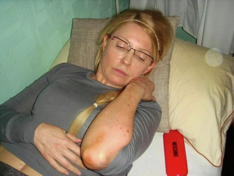 Невідома хвороба вразила 50% тіла Тимошенко