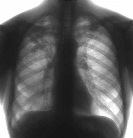 В мукачівської сім'ї хворої на туберкульоз відібрали дітей