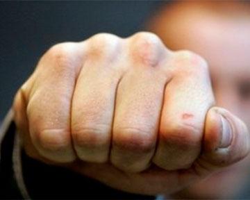 Затриманим у побитті юнаків на Рахівщині вже оголошено про підозру у вчиненні кримінальних правопорушень