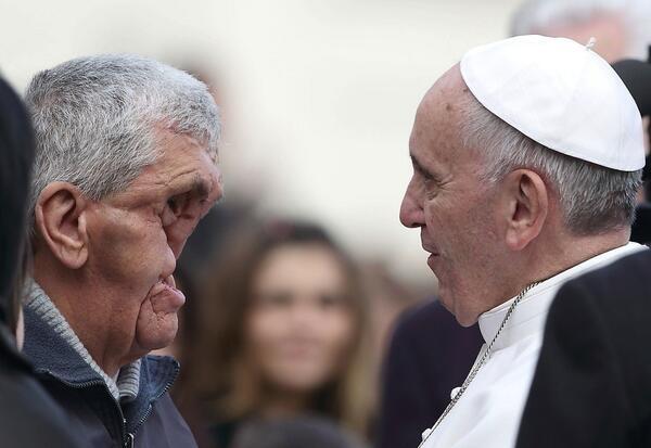 Щоб благословити чоловіка з деформованим обличчям Папа Римський перервав проповідь (ФОТО)
