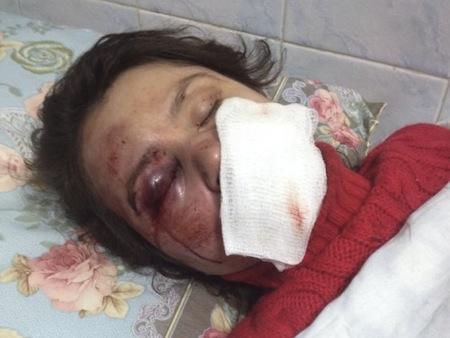 Журналістку Тетяну Чорновол жорстоко побили цієї ночі (ФОТО,ВІДЕО)