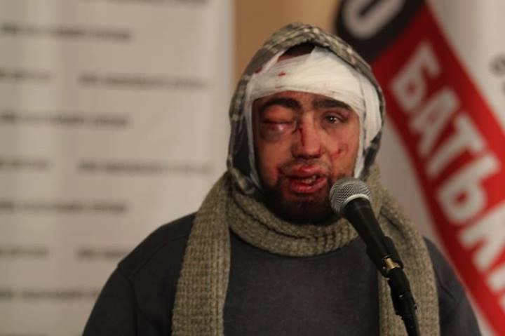 """Страшні подробиці побиття людей на Євромайдані: спочатку бив """"Беркут"""", як набридло, передав на знущання ВВешникам"""