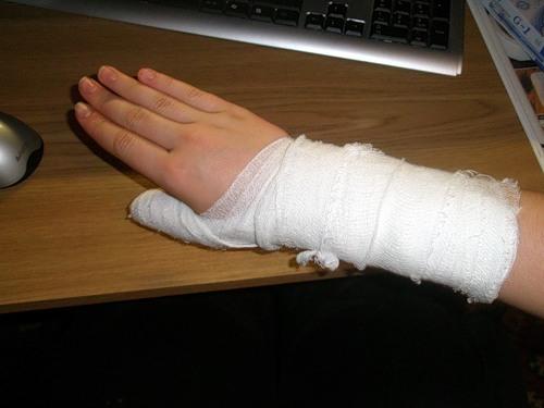 У Іванівцях чоловік зламав руку сусідці через 40 сантиметрів землі