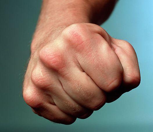 Свалявські поліцейські встановили осіб, які побили двох бійців АТО