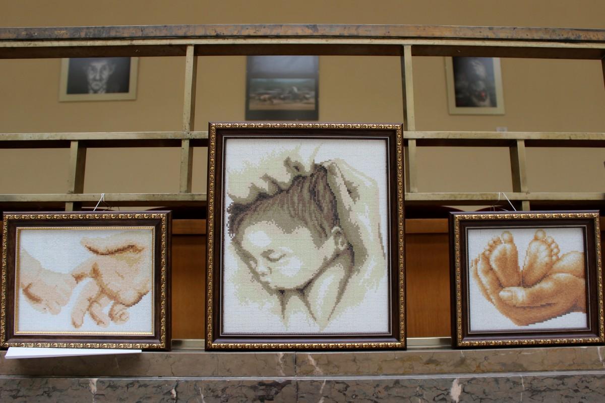 Медики Закарпаття презентують свої творчі роботи на виставці в Ужгороді