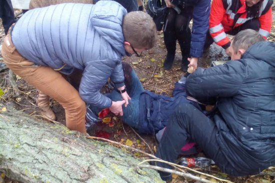 Дівчинка, на яку в Ужгороді впало дерево, пройде реабілітацію в медичному інституті Дебрецена