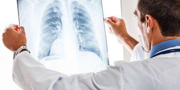 В області продовжує зростати захворюваність на туберкульоз