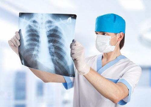 Ужгород долучається до місячника боротьби з туберкульозом