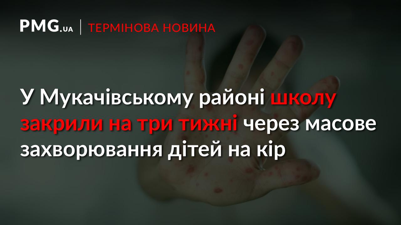 У селі на Мукачівщині виявлено масове захворювання дітей на кір. Школу закрили на три тижні