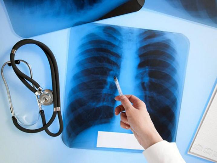 На Закарпатті за рік майже 30 дітей підхопили туберкульоз