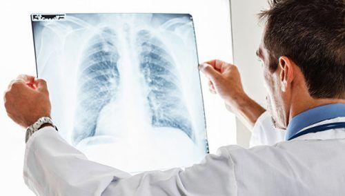 У 2018 році на Закарпатті зареєстровано понад 1000 випадків туберкульозу