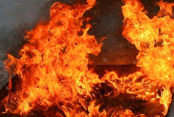 Під час пожежі закарпатець отримав значні опіки