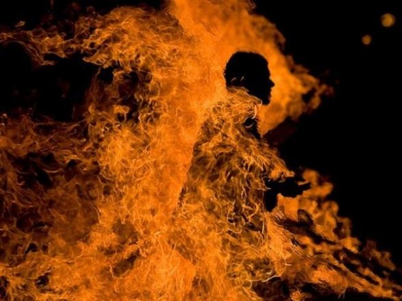 Облив себе пальним і підпалив: поліція проводить перевірку шокуючого інциденту у Косині