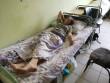 Опубліковано фото людей, які постраждали від блискавки на Закарпатті