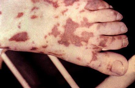 У 32 закарпатців виявили небезпечне захворювання