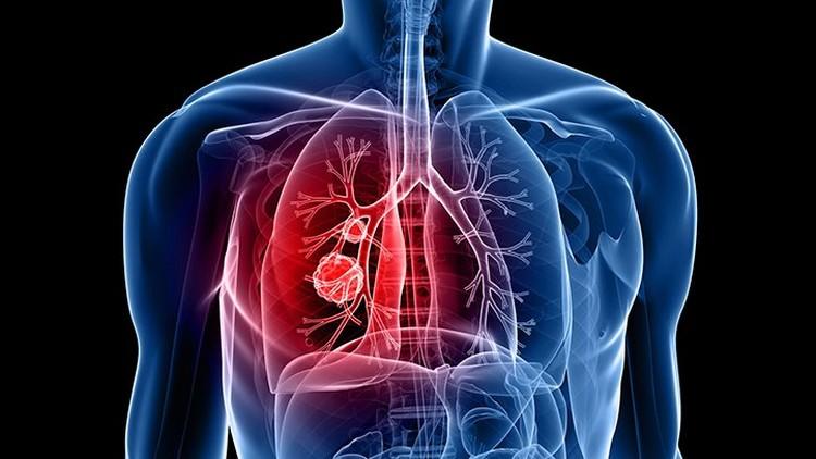 На Закарпатті готуються закривати тубдиспансери. Частину хворих на туберкульоз передадуть сімейним лікарям