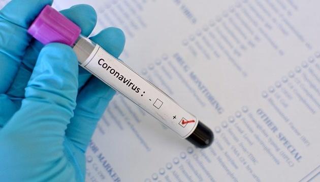 Медики назвали нові симптоми коронавірусу