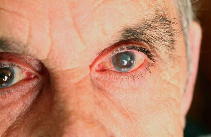 Закарпатські лікарі розповіли про небезпечну хворобу, яка часто виникає у людей після 40 років