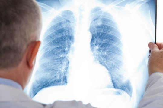 У Мукачеві госпіталізували 2 хворих із пневмонією