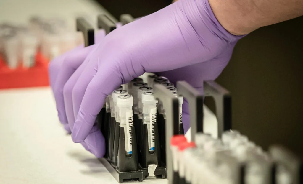 Відомі результати тестів контактних осіб інфікованої працівниці Закарпатської ОДА