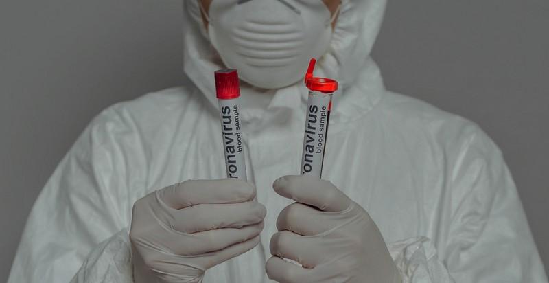 Ще в одному районі області виявили коронавірус