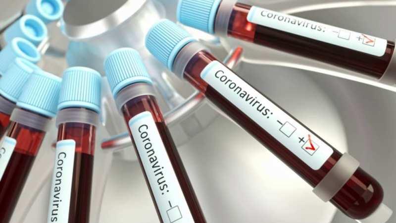 Рідкісне ускладнення COVID-19: лікарі розповіли деталі