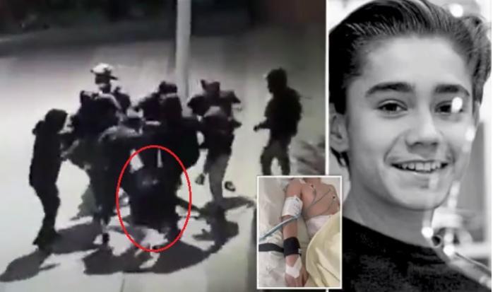 Жорстоко побитий у Парижі хлопець із Закарпаття проходить реабілітацію