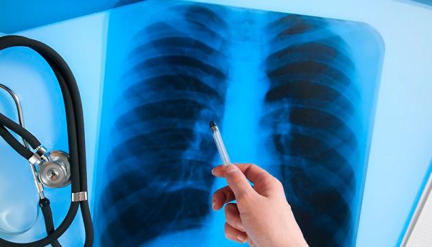 На Закарпатті зменшився рівень захворюваності на туберкульоз