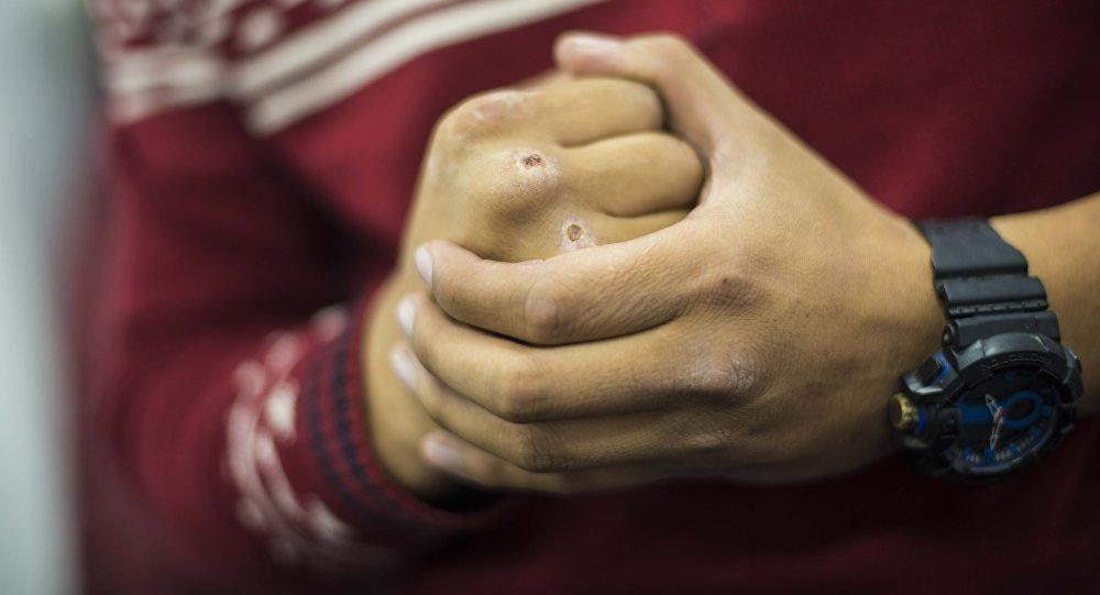 Бійка у Мукачеві: потерпілі отримали множинні ушкодження