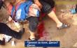 Калюжі крові та крики: як рятували закарпатця, який намагався скоїти самогубство