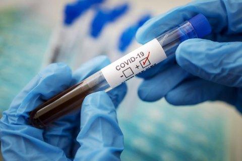 На Закарпатті за добу не виялили жодного хворого на коронавірус