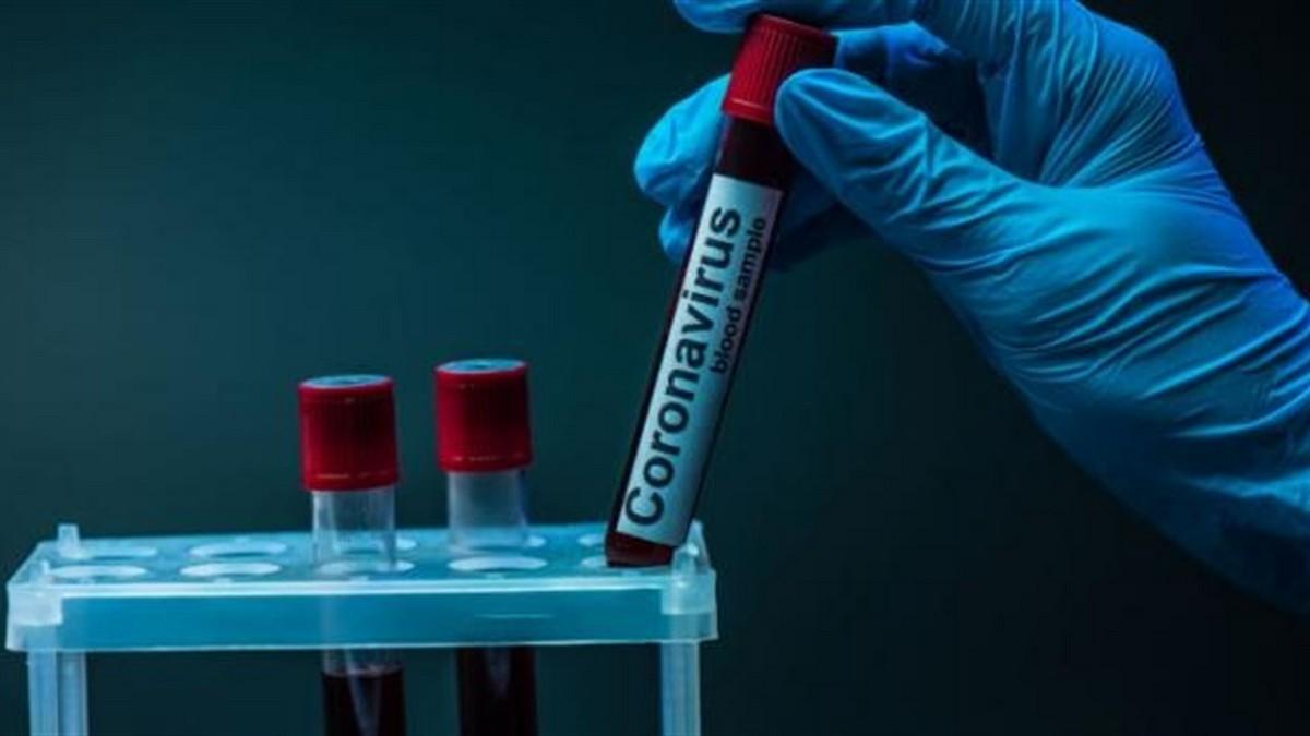 Коронавірус на Закарпатті: за добу понад 100 нових випадків